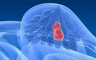 Симптомы, виды и методы лечения диффузной фиброзно-кистозной мастопатии