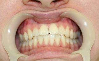Разновидности кист челюсти и возможные осложнения