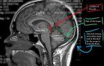 Симптомы и методы лечения кисты в головном мозге
