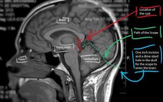 Симптомы и методы лечения кисты головного мозга у взрослых