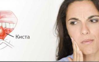 Как вылечить кисту десны и как она проявляется