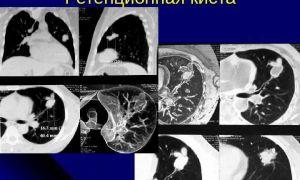 Виды ретенционных кист и методы их лечения