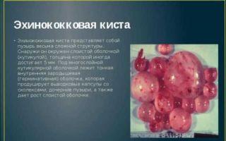 Причины и варианты лечения эхинококковых кист