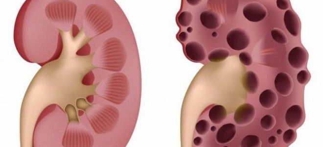 Причины мультикистоза почек у плода, лечение и возможные последствия