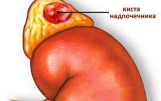 Как сейчас лечат кисту надпочечника и какими симптомами она проявляется