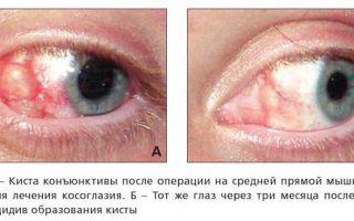 Варианты лечения кисты глаза и возможные осложнения