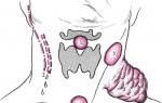 Виды кист шеи, лечение и возможные осложнения