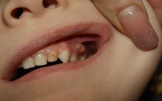 Как вылечить кисту во рту и отчего она может появиться?