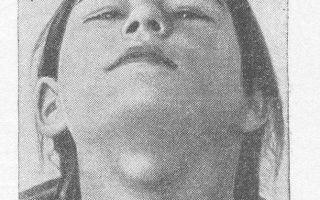 Лечение срединной кисты шеи, в каких случаях нужна операция
