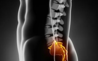 Диагностика и лечение периневральной кисты в позвоночнике