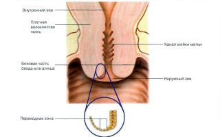 Шейка матки с кистами эндоцервикса: опасно ли это и как лечить?