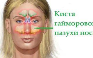 Диагностика и методы лечения кист в гайморовой пазухе