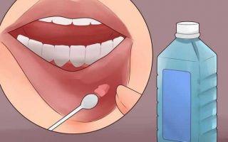 Причины появления и лечение ретенционной кисты нижней губы