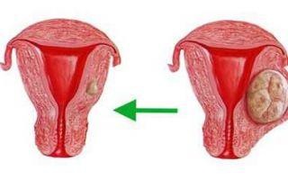 Методы лечения и диагностика ретенционных кист шейки матки