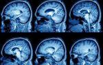 Методы лечения и диагностика арахноидальной  кисты