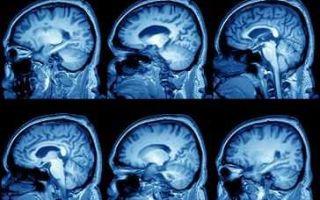 Методы лечения и диагностики арахноидальной кисты
