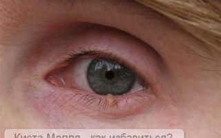Причины, диагностика и методы лечения кисты Молля