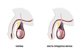 Как вылечить кисту придатка яичка без последствий