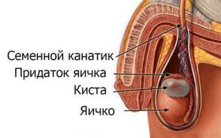 Причины, лечение и последствия при кисте яичка у мужчин