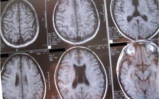 Могут ли быть последствия от кисты прозрачной перегородки головного мозга