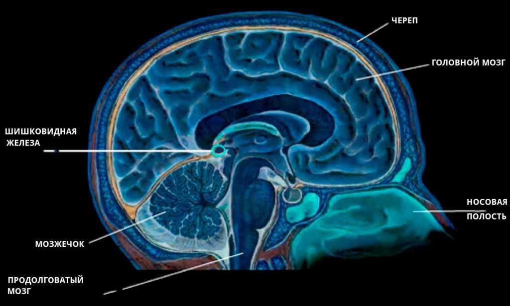 Киста эпифиза головного мозга последствия
