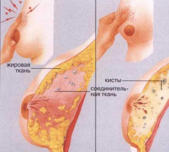 Опасна киста в грудях