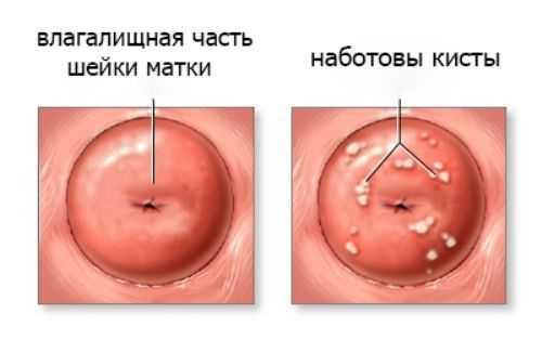 Влагалищная часть шейки матки и наботовы кисты