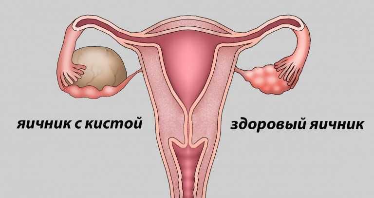 Яичник с кистой и здоровый яичник