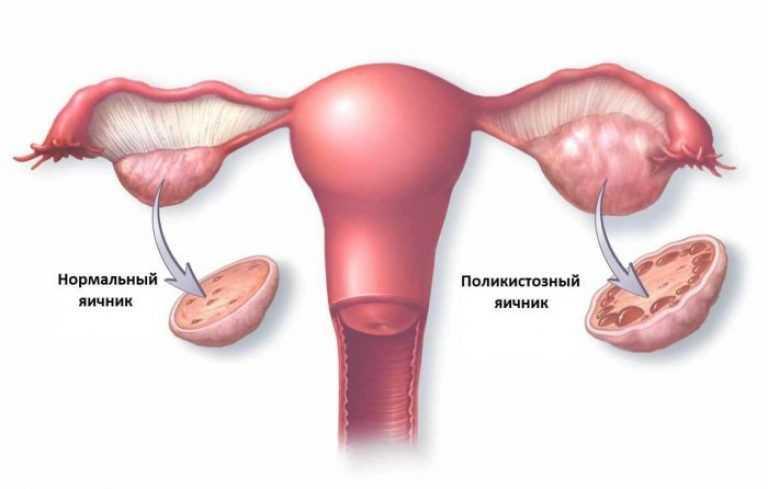 Нормальный яичник и поликистозный яичник