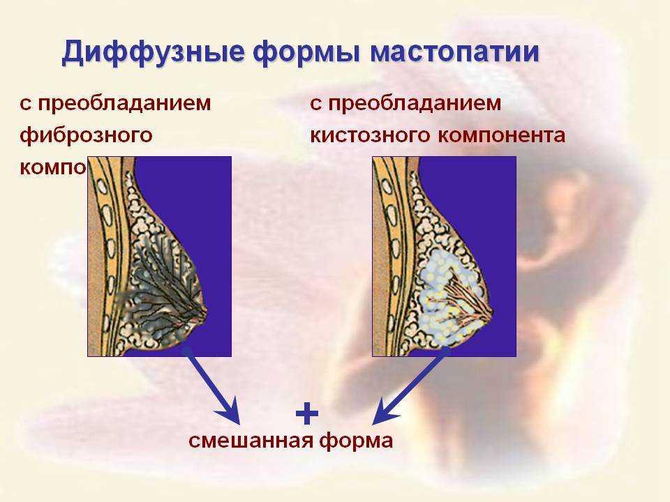 Диффузные формы