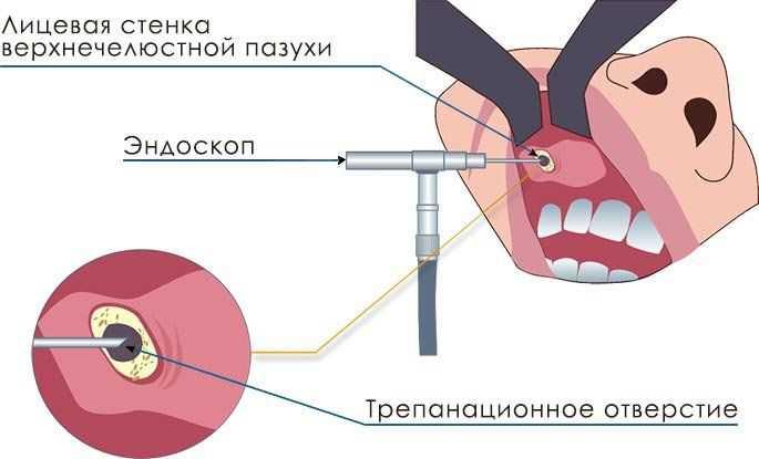 Эндоскопическое удаление кисты гайморовой пазухи