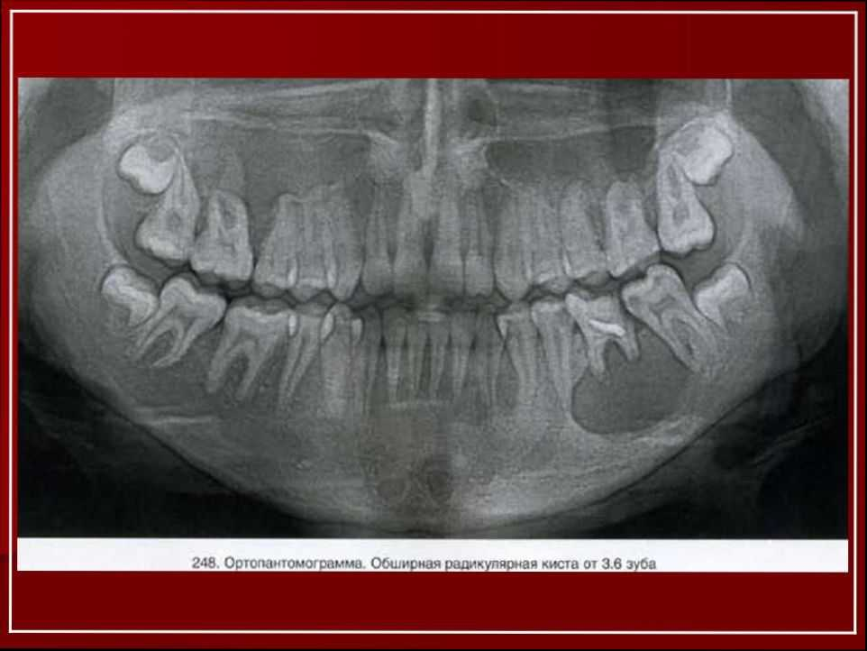 Цистэктмия и цистотомия зубов одонтогенные кисты челюсти и другие показания порядок проведения процедур и их отличия