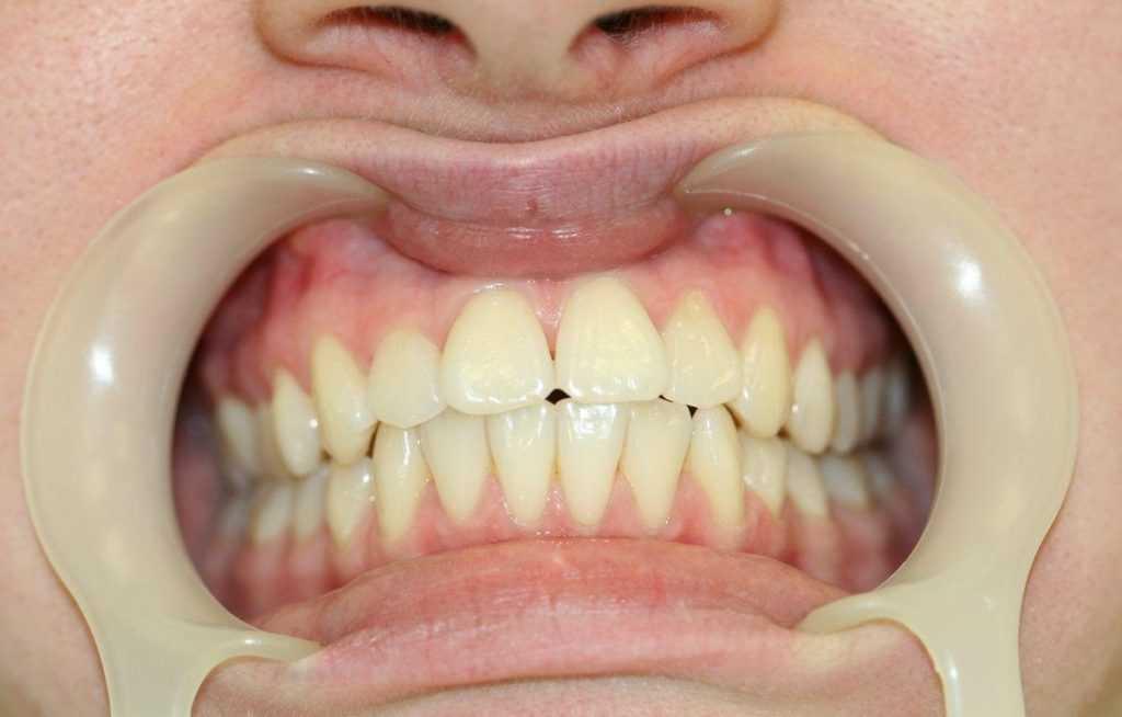Лечение альвеолита после удаления зубов: методыв домашних условиях