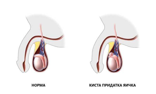 Киста придатка яичка у мужчин: последствия и лечение