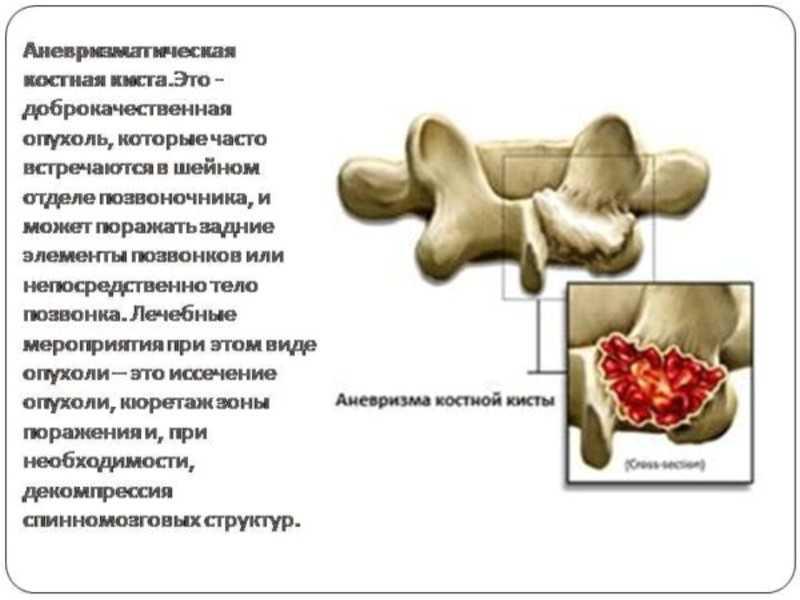 Аневризмальная костная киста