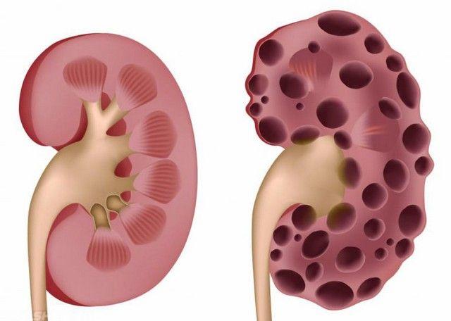 Редкие почечные аномалии как лечить мультикистозную дисплазию