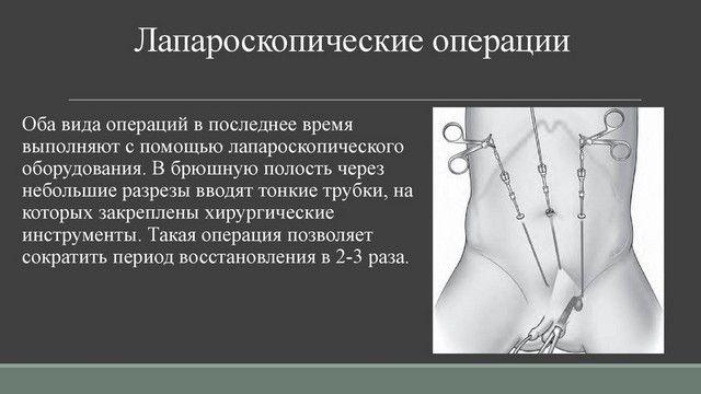 Лапароскопический способ