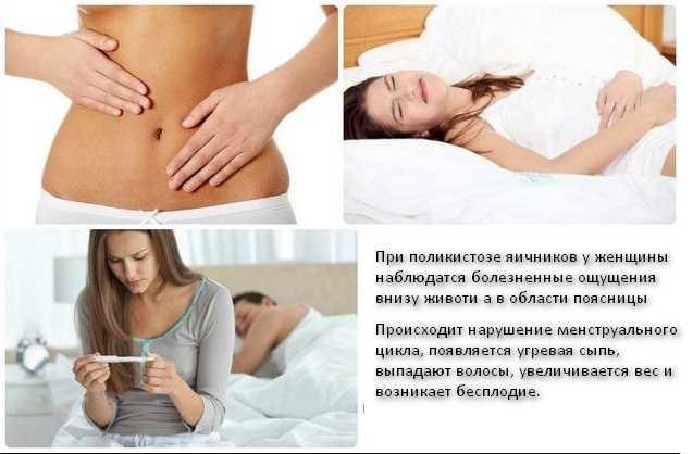 Беременность при поликистозе яичников симптомы и