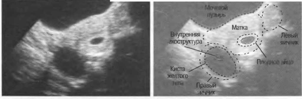 Плохое желтое тело при беременности