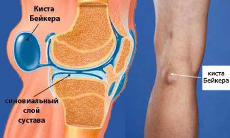 Болит коленный сустав чем лечить в домашних условиях